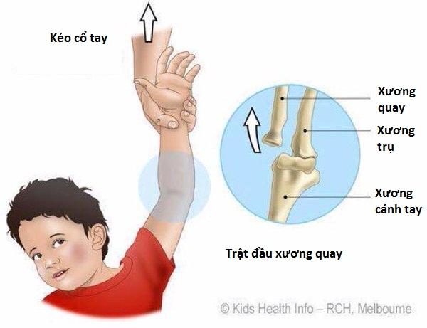 Tình trạng này thường xảy ra ở trẻ dưới 5 tuổi khi người lớn nắm cổ tay hay bàn tay trẻ rồi kéo lên (Ảnh: Kids Health Info)